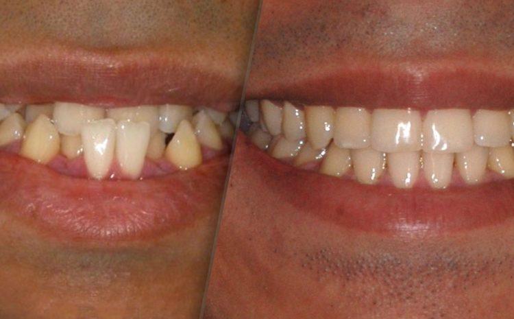 Tratamento Ortodôntico do Apinhamento Dentário.