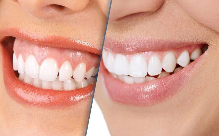 Correção de assimetrias dentárias e sorriso gengival com Ortodontia e Cirurgia Periodontal.