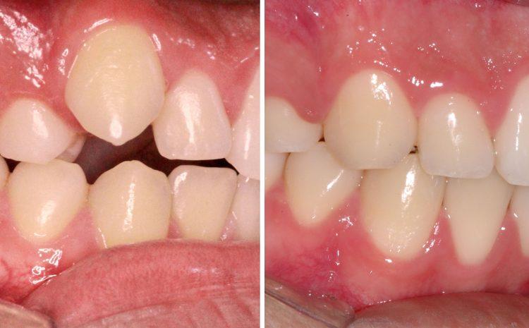 Extrações dentárias na Ortodontia.