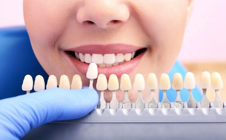Cinco fatos sobre as Lentes de Contato Dental.