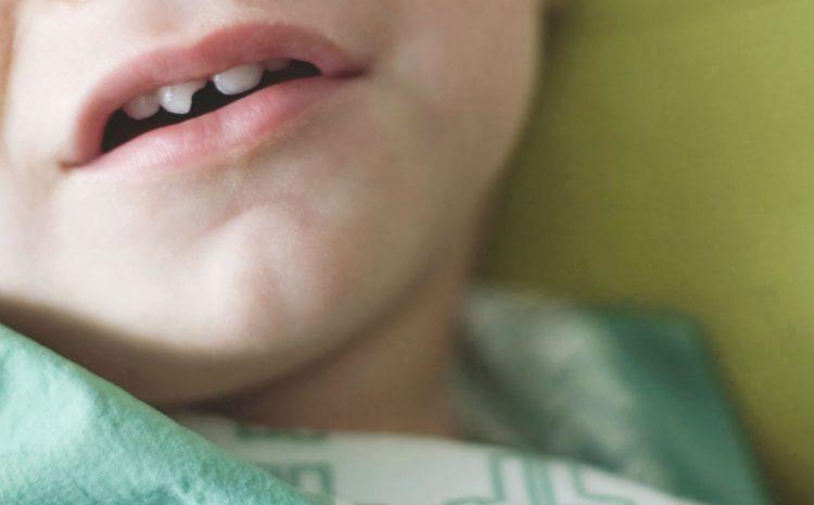Traumatismo em Dentes Decíduos.